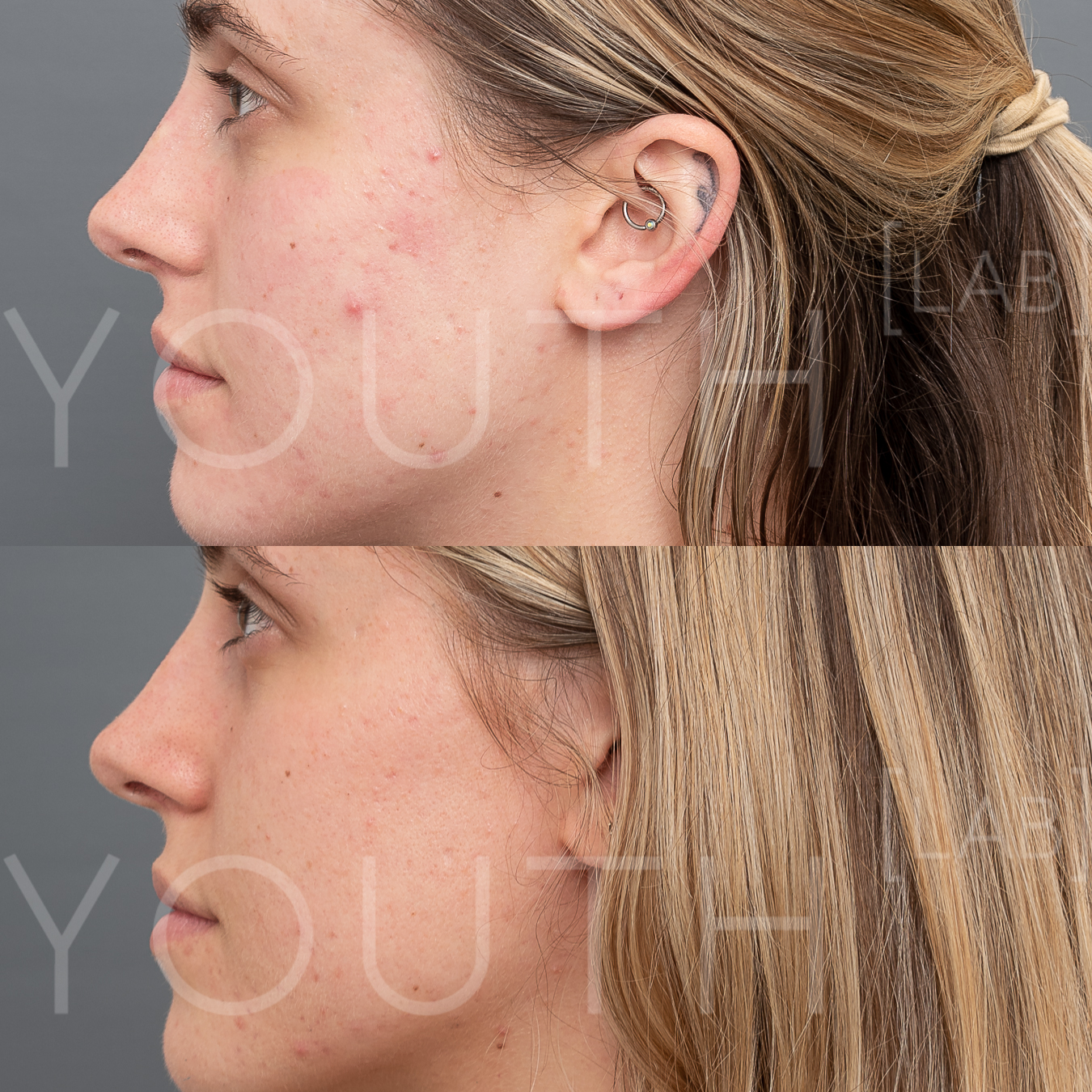 CT INTENSIF NEEDLING B&A 2.jpg