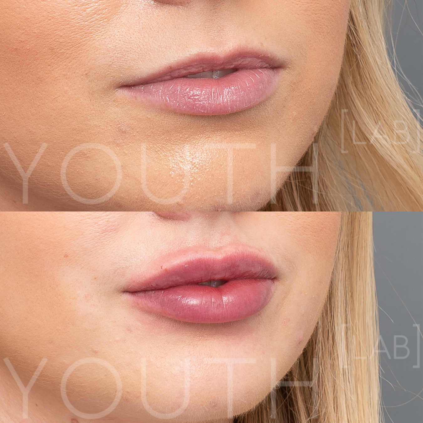 Consented - AM - Lips B&A immediately post 1ml.jpg