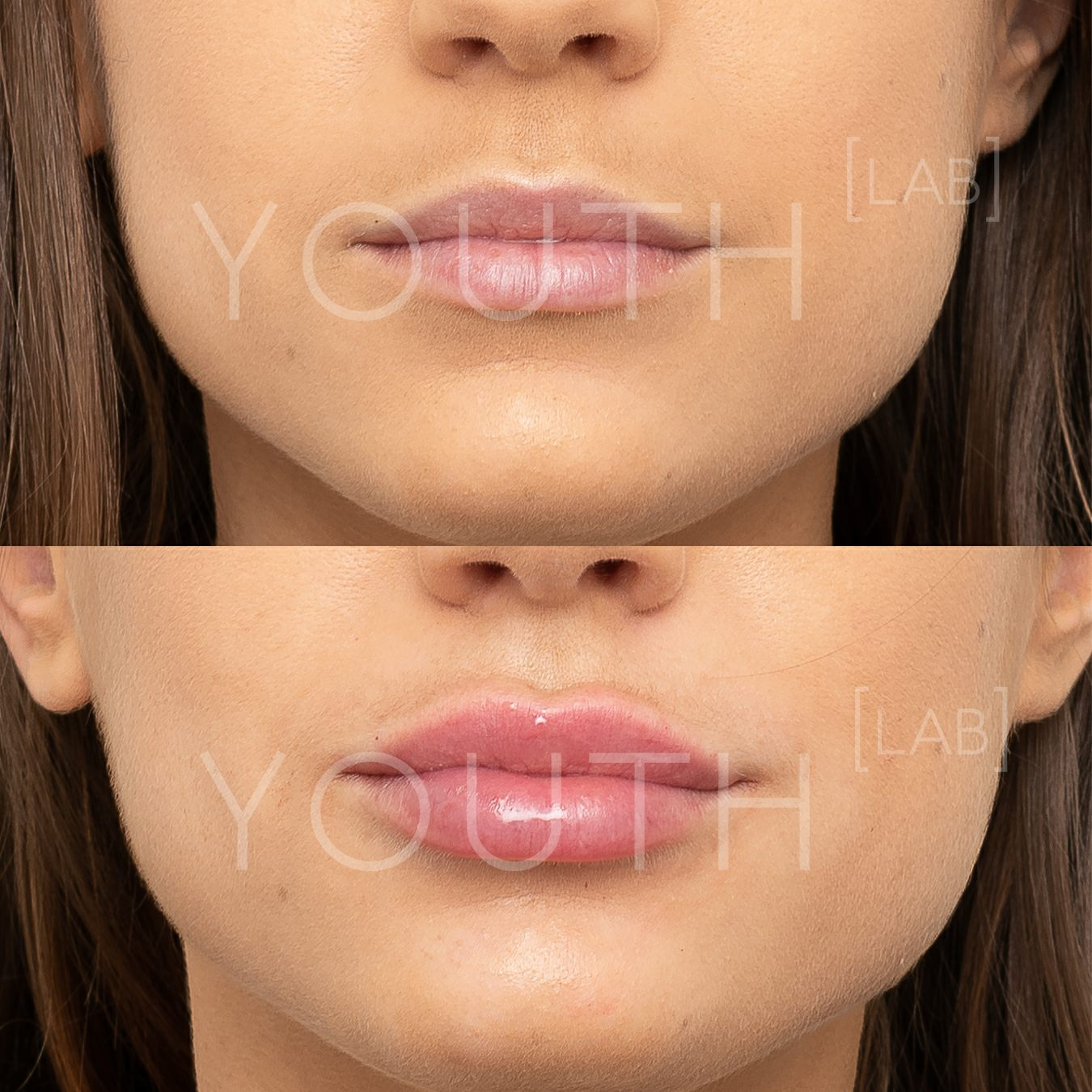 Consented - VA - lips B&A 3.jpg