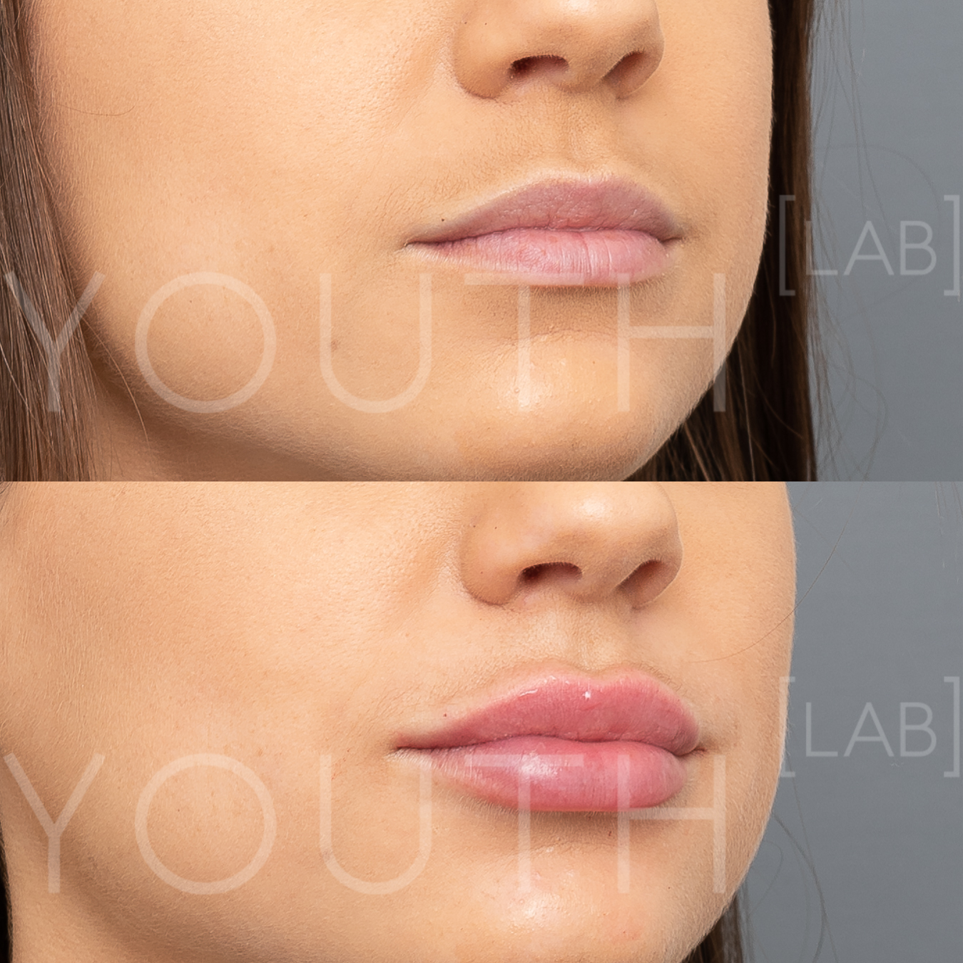 Subtle, Natural Lip Enhancement (Lip Fillers) — Youth Lab, Perth