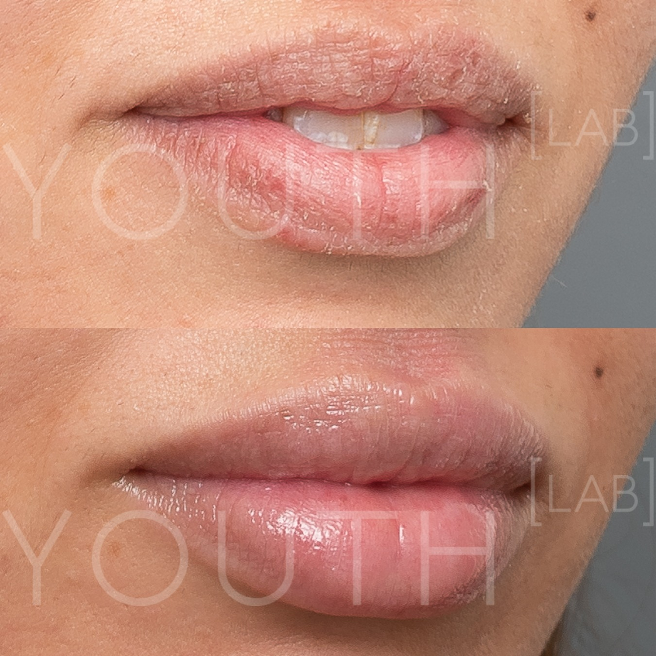 consented - LT - lip filler 1ml 6 weeks post 2.jpg