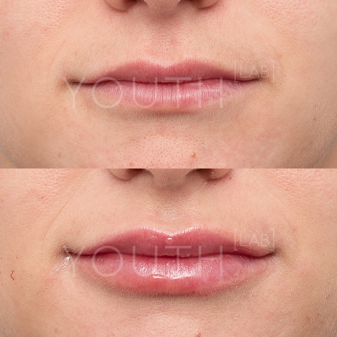 consented -  NA  - lips B&A 1ml (1) 070119.jpg
