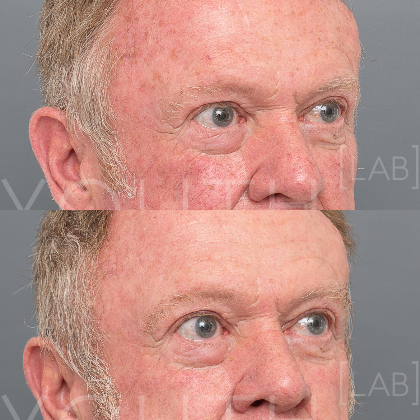 Click Image To Enlarge    Treatment: 1 x Halo w/ BBL Photorejuvenation Targeting: Redness & Pigment  Photo Filter: No Filter Close Up Result: Reduced pigment and reduced redness, improving overall skin tone and condition