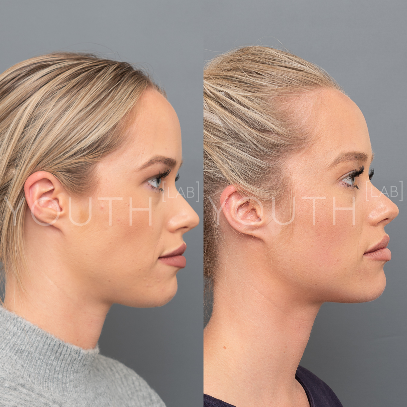 Fat dissolving injections for double chin