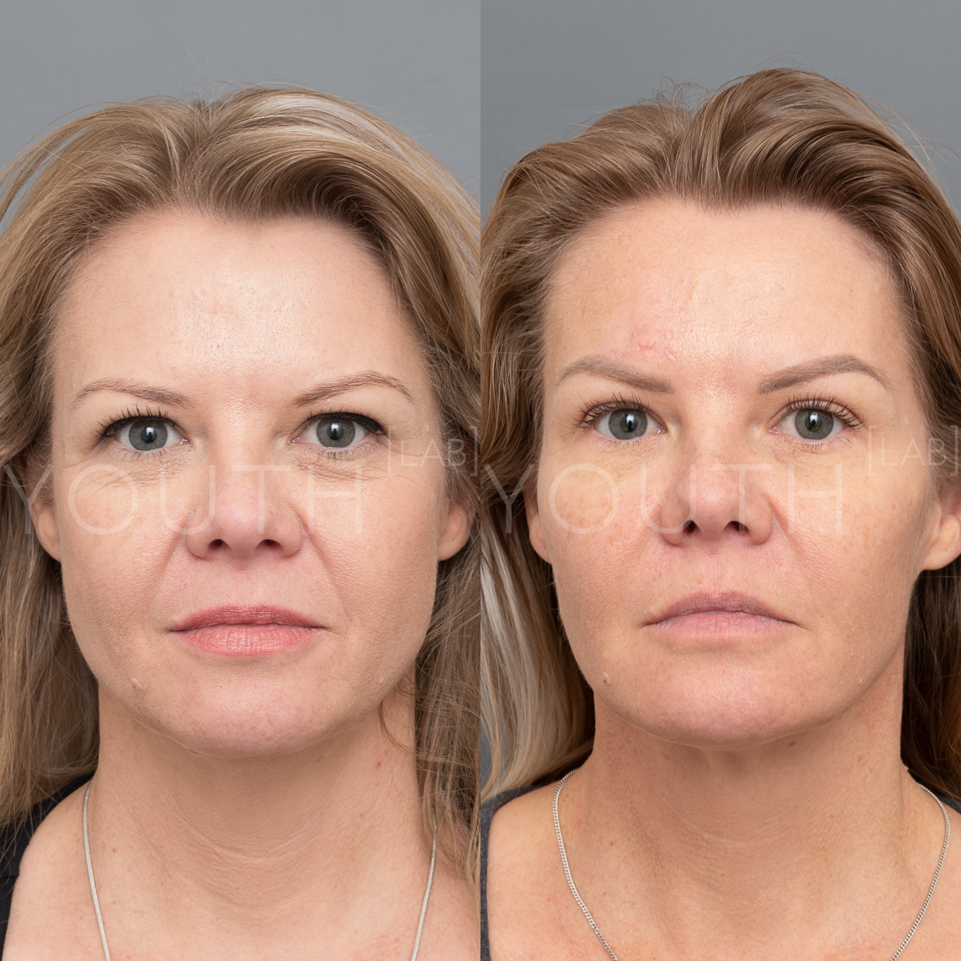 Experts In Premium Dermal Fillers — Youth Lab, Perth
