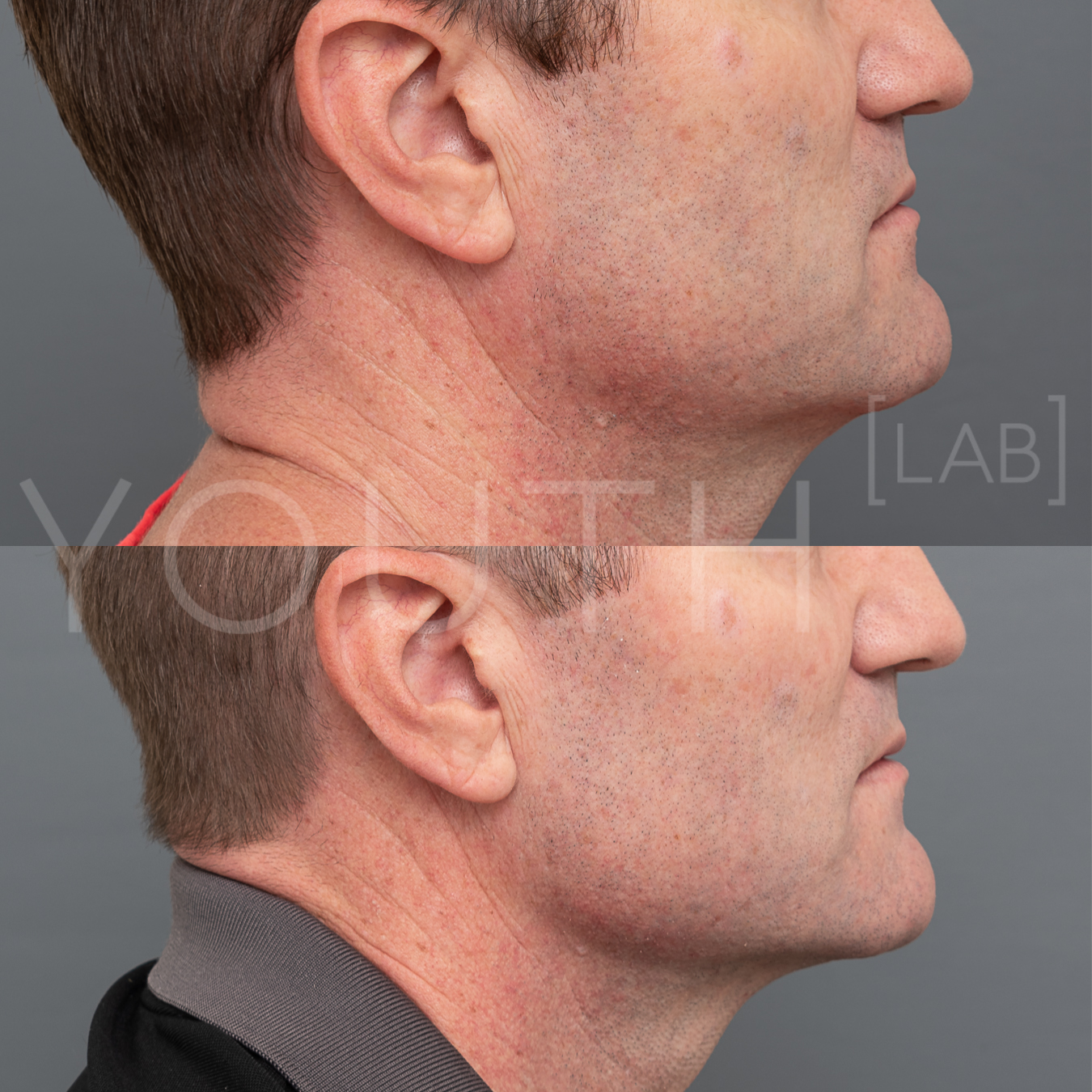 Double Chin Fat Dissolving Injections — Youth Lab, Perth