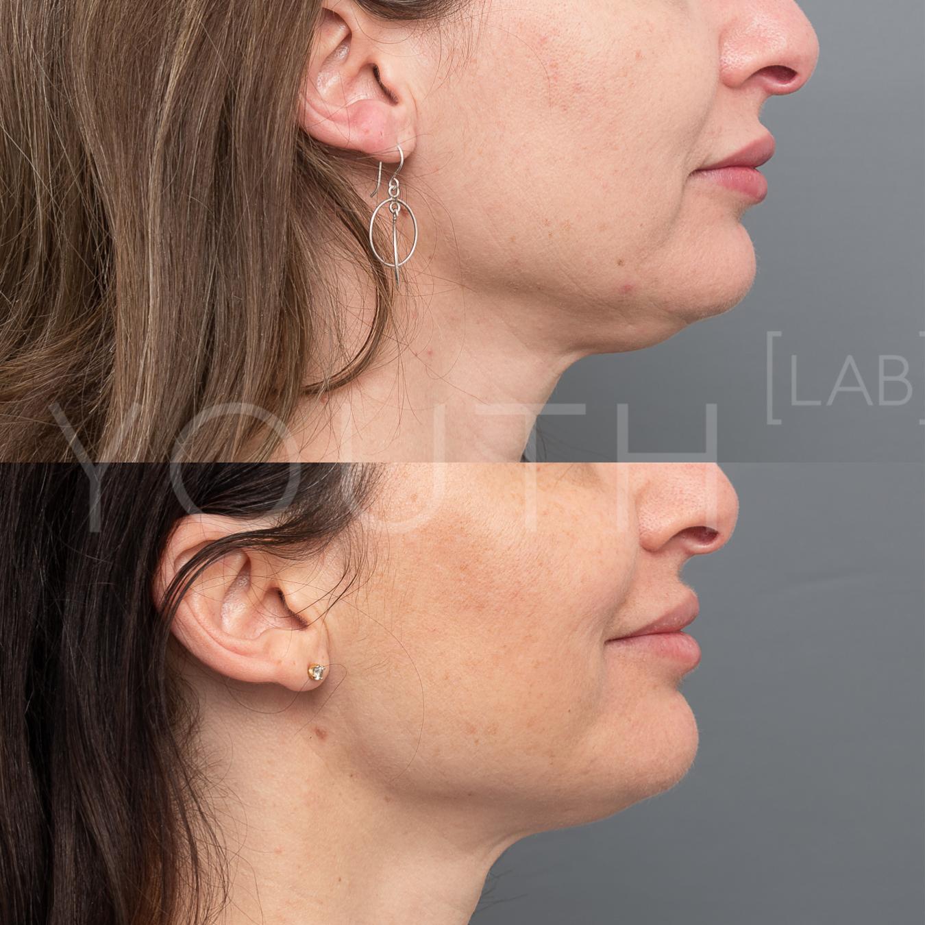 Consented LF fat dissolving, 5 vials over 3 treatments KJ.jpg