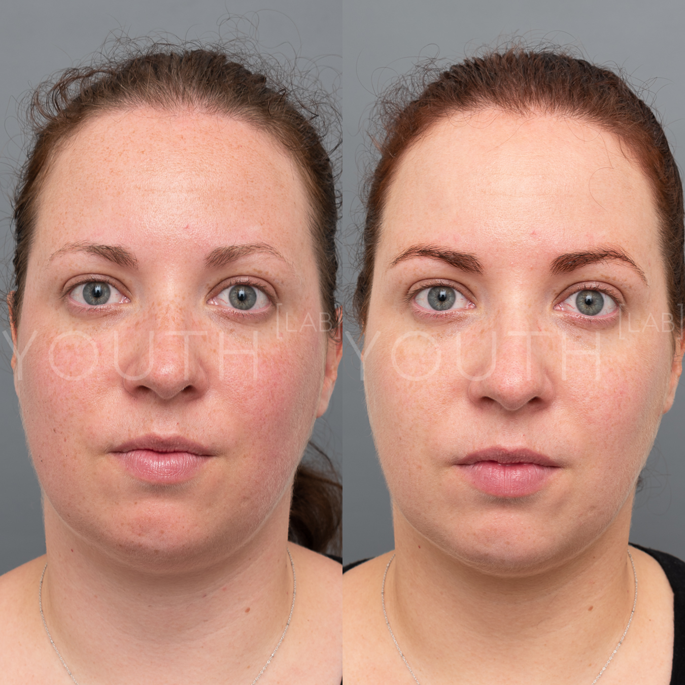 Treatment:  2 x BBL Photorejuvenation + 2 x Hydrafacials  Targeting:  Redness + Slight Congestion  Photo Filter:  No Filter  Result:  Reduction in redness and light sun damage, resulting in lighter and smoother skin tone.