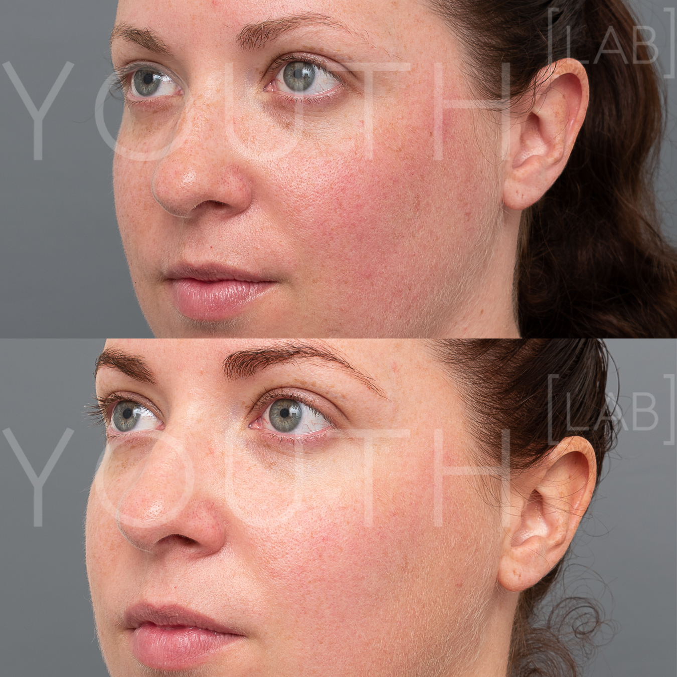 Treatment:  2 x BBL Photorejuvenation + 2 x Hydrafacials  Targeting:  Redness + Slight Congestion  Photo Filter:  Close Up  Result:  Reduction in redness and light sun damage, resulting in lighter and smoother skin tone.