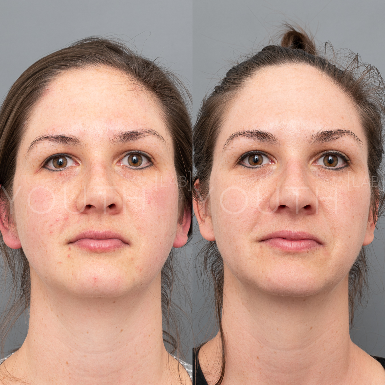 Treatment:  3 x BBL Photorejuvenation + 3 x Hydrafacials  Targeting:  Sun Damage + Congestion  Photo Filter:  No Filter  Result:  Reduction in congestion and sun damage, resulting in lighter, smoother skin tone.