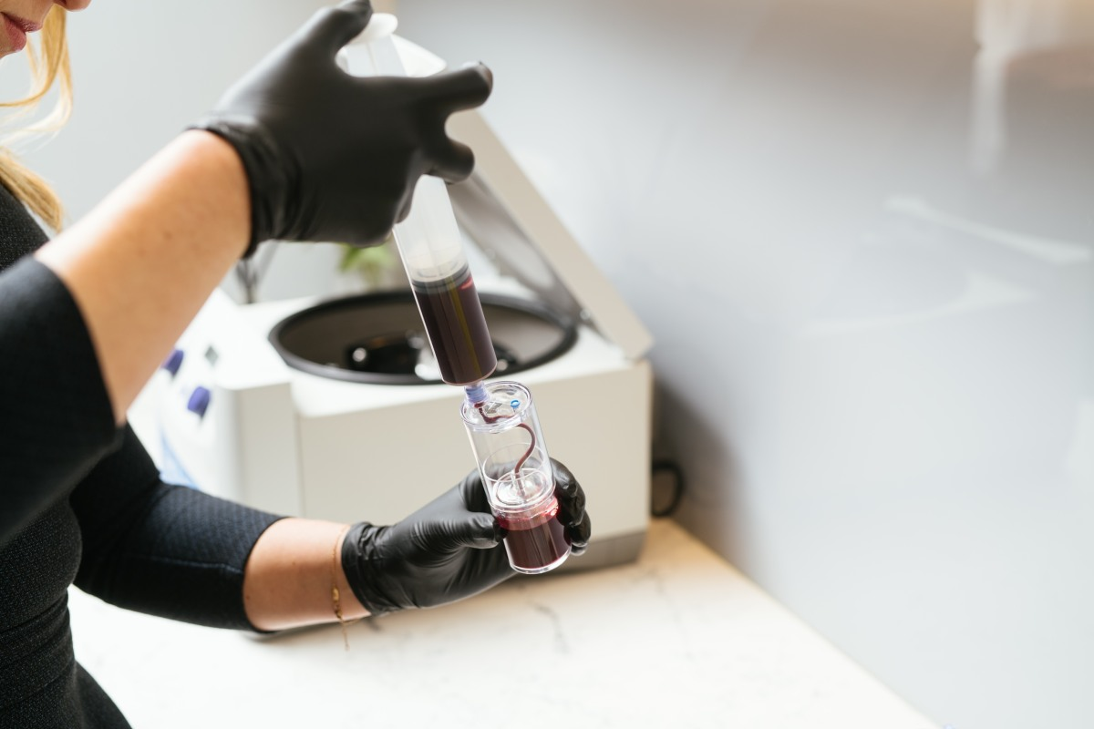 PRP, or platelet rich plasma 1