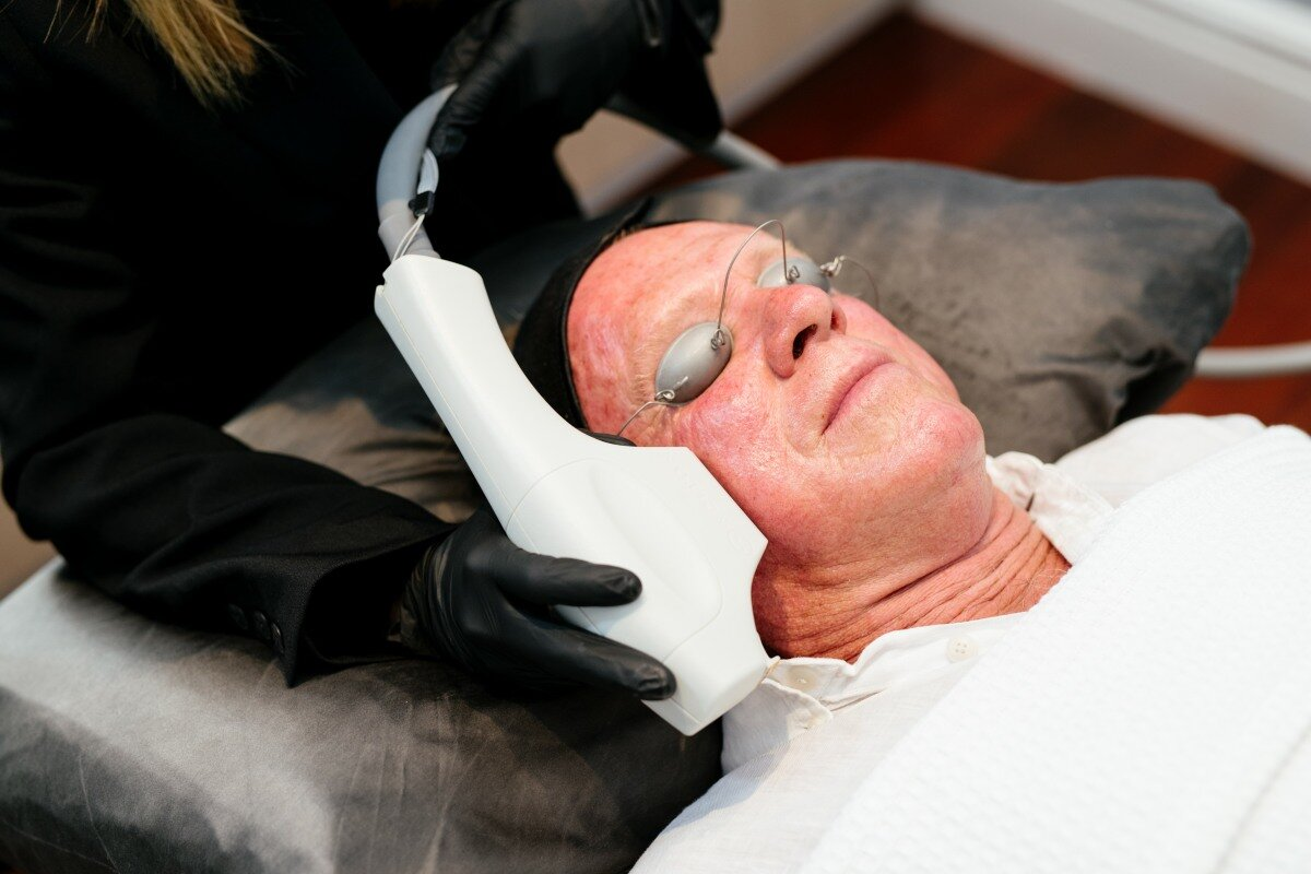 Add on BBL Photorejuvenation - Amplify treatment for $399 Full Face