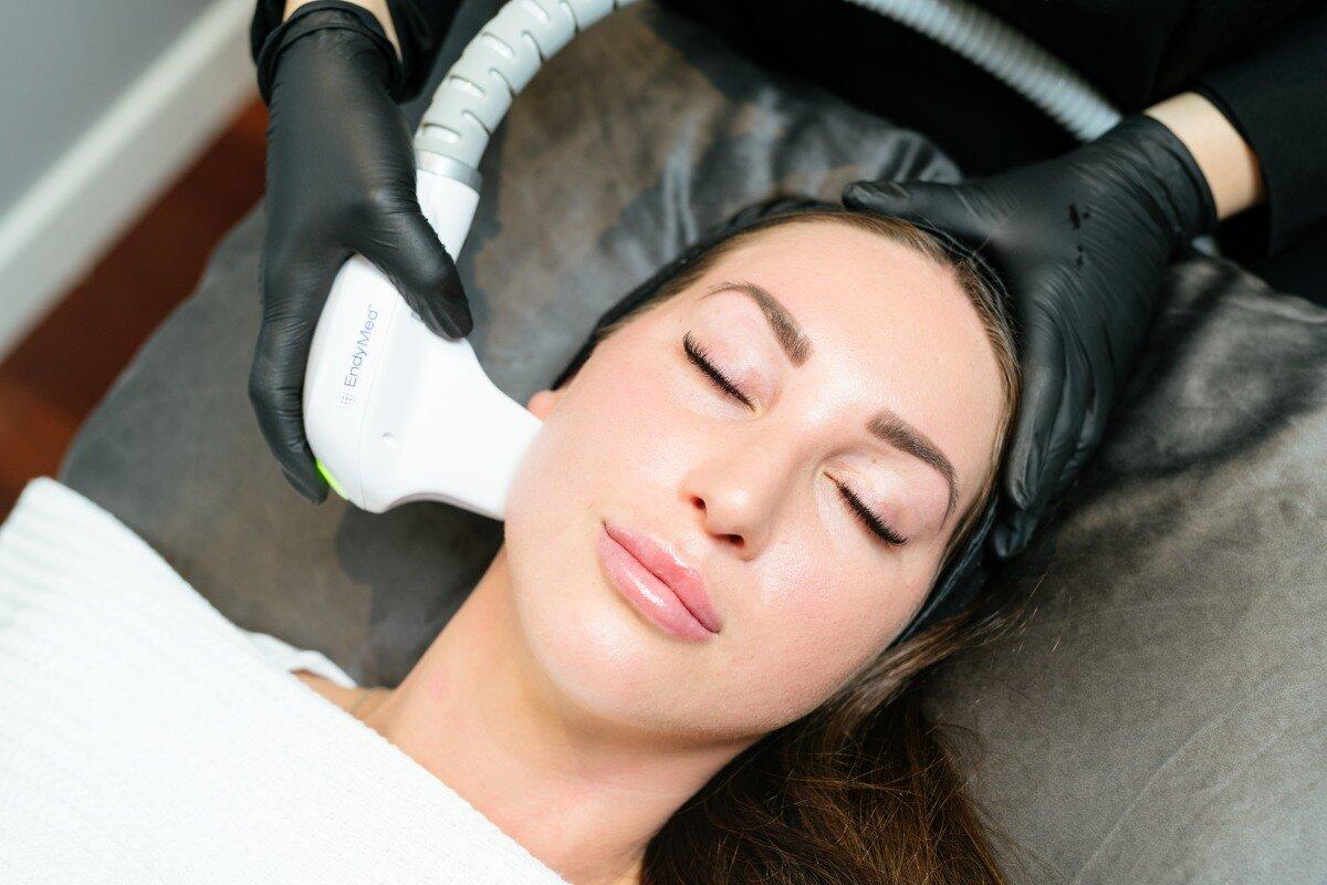 Add on RF Skin Tightening - Save 10% $179 per area