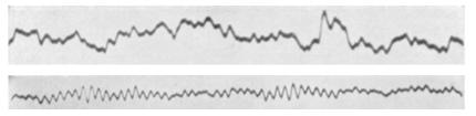 Hans Berger's first EEG recording. The top represents a beta rhythm, and the bottom represents an alpha rhythm.