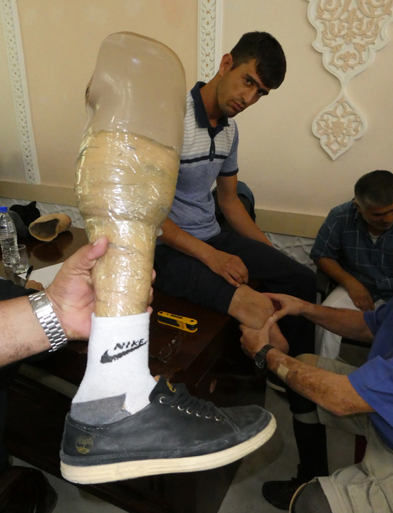 Prosthetic limb held together with tape