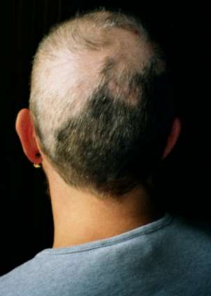 Hairpulling.jpg