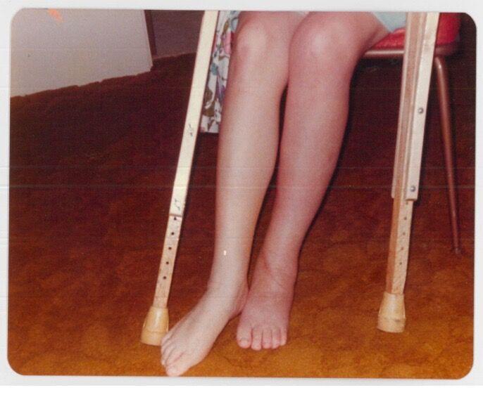 Legs.jpeg