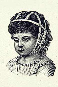 Ce type de bandage était utilisé pour redresser les oreilles de l'enfant