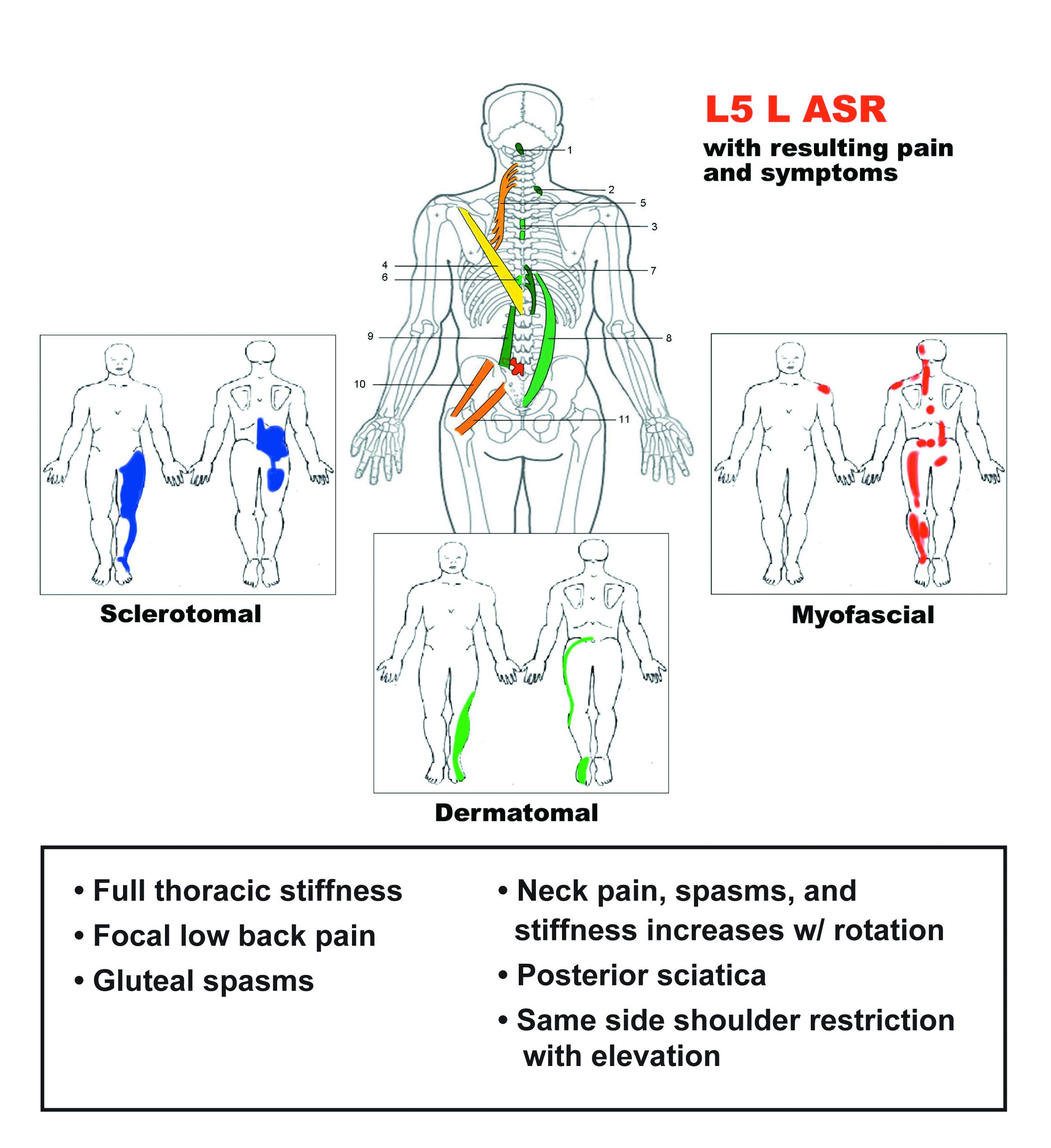 Sample SRS L5 chart
