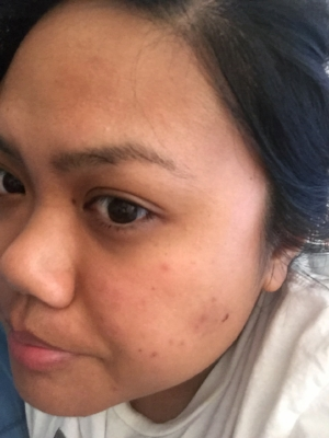 Day after facial - had a lot of inflammation on the left side of my face.