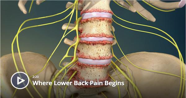 Where Lower Back Pain Begins