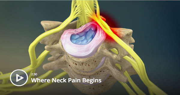 Where Neck Pain Begins