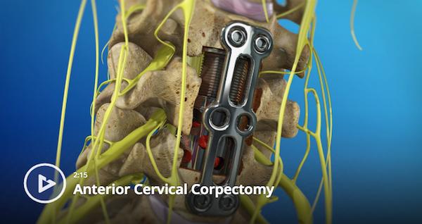 Anterior Cervical Corpectomy