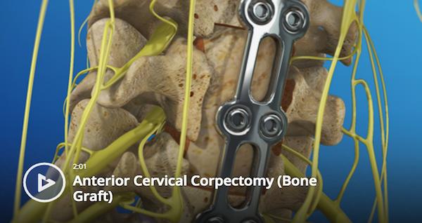 Anterior Cervical Corpectomy (Bone Graft)