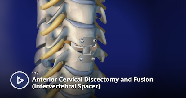 Anterior Cervical Discectomy and Fusion (Intervertebral Spacer)