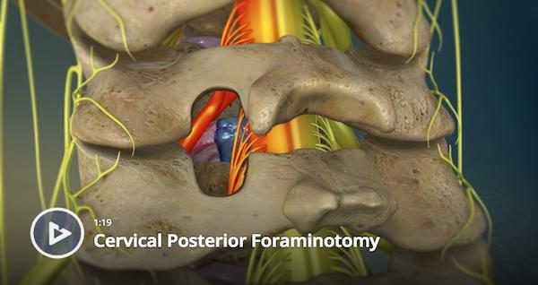 Cervical Posterior Foraminotomy