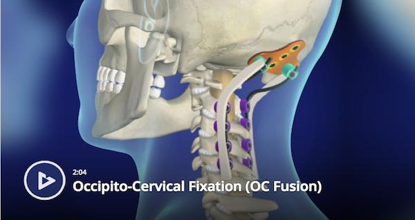 Occipito-Cervical Fixation