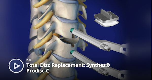 Total Disc Replacement