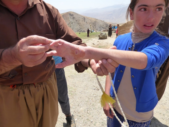 Young female in the Alana Gully with shrapnel in her wrist from Iranian shelling. June, 2016. Photo by: Julie Brown.
