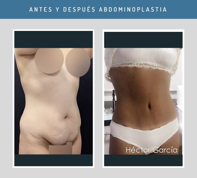 ex. pentru pierderea in greutate pierderea de grăsime corporală în 4 săptămâni