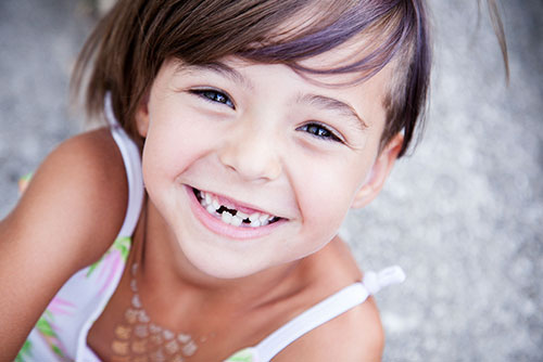 Young girl with a couple of missing teeth smiling up