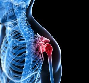 osteoporose-300x278.jpg