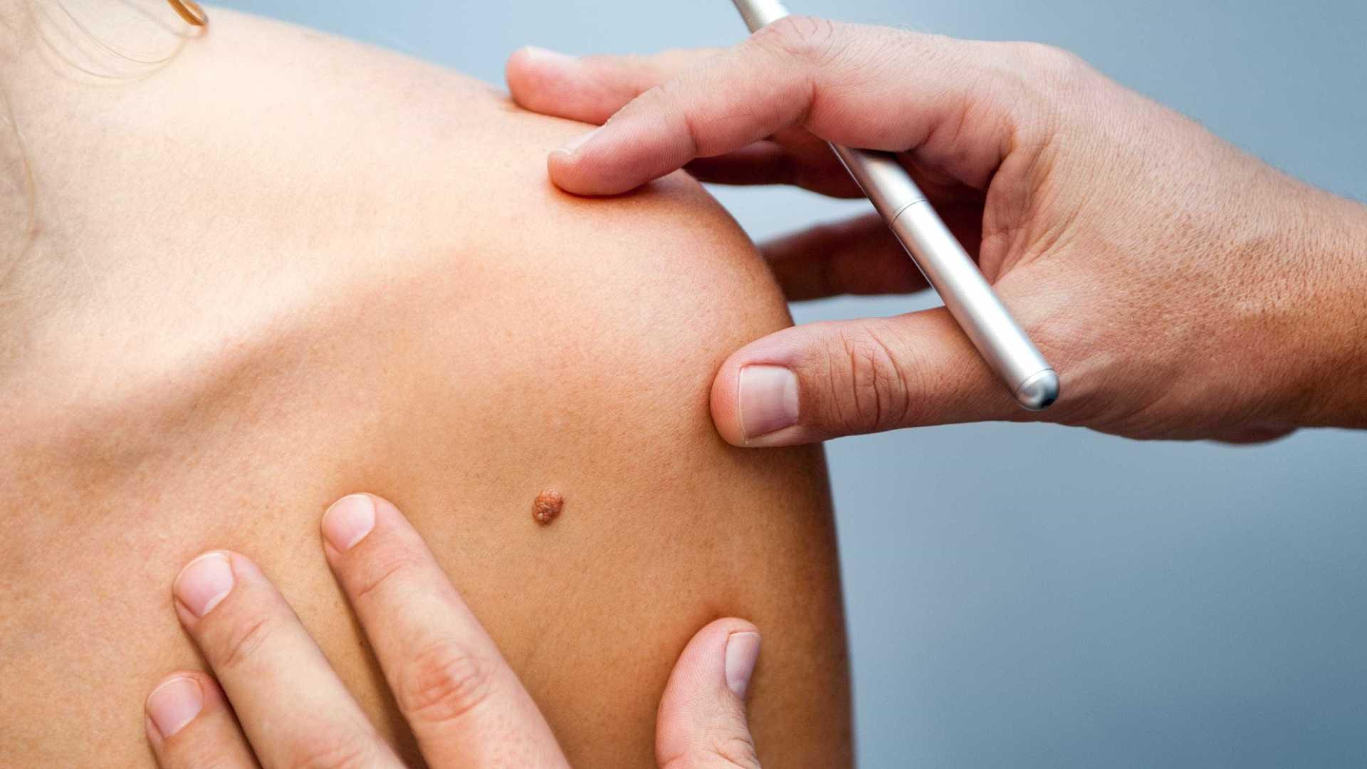 O melanoma é considerado o câncer de pele mais agressivo