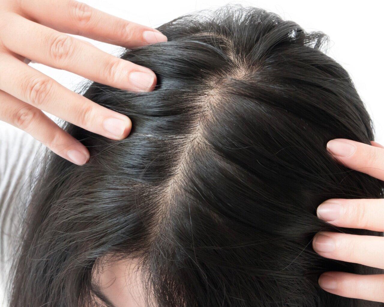 Thin Dry Frizzy Menopause Hair Oh My Lisa Health Blog