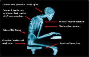 Frequent computer postures