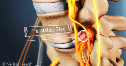 You can see the disc pushed out the back affecting the nerves at that spinal level.