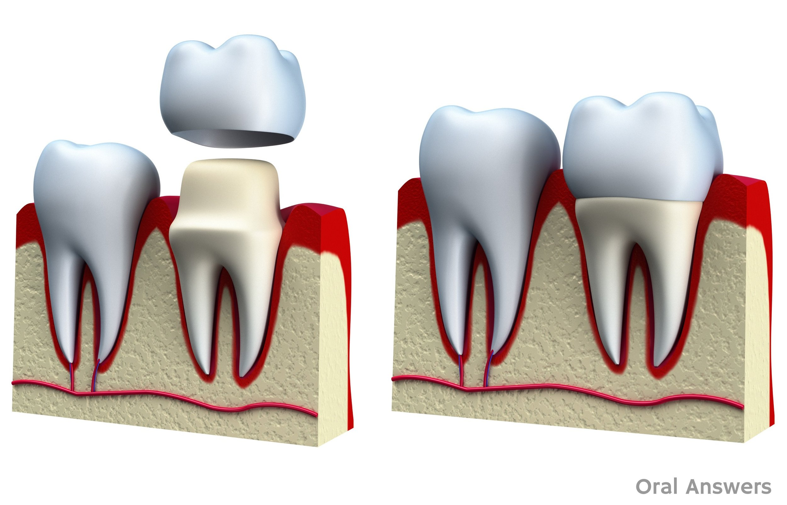 Crowns - A crown (also known as Caps) rebuilds, protects and strengthens a broken tooth, a cracked tooth, a heavily decayed tooth, a tooth with a very large filling, and/or a tooth with a root canal.  A crown can be made of porcelain or gold, or a combination of the two.
