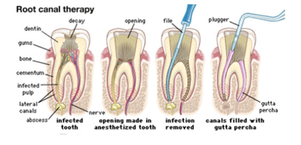 - A root canal procedure (also known as endodontic therapy)  is necessary when the tooth's pulp (nerve chamber) is infected or inflamed, and the goal is to save the tooth.  During a root canal procedure, the tooth is treated by cleaning out the infected pulp and medicating the tooth. Once the infection has been removed, the canals of the tooth are filled and sealed.  Finally, the tooth is filled with composite resin, and a crown may be recommended if the tooth was heavily decayed or cracked. Root canal treatment can be performed with little to no discomfort.