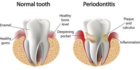 "- Periodontal disease, or gum disease, is an infection of the gums that leads to destruction of the bone that support the teeth. About half of American adults have periodontal disease, and many are unaware because it is often painless.Periodontal disease is the number one reason for tooth loss.  Moreover, research suggests a link between periodontal disease and other systemic diseases such as stroke, bacterial pneumonia, diabetes, cardiovascular disease.  Periodontal disease also increases the risk of pregnancy complications. Studies has shown that periodontal disease makes blood sugar more difficult to regulate in diabetic patients, and diabetes makes you far more susceptible to periodontal disease.  Smoking also dramatically increases the risk of periodontal disease.Good oral hygiene, a balanced diet, and regular dental visits can help reduce your risk of developing periodontal disease.  Signs and symptoms of periodontal disease often include bleeding gums, loose teeth, new spacing between the teeth, persistent bad breath, swollen gums, and gum tenderness.To stop the periodontal disease process, we often recommend a special type of cleaning called ""scaling and root planing,"" which is a deep cleaning to ensure all tartar above and below the gumline is removed, and the root surfaces are smooth and clean.  In severe cases of periodontal disease, we may recommend you see a specialist, called a Periodontist, who could offer more extensive and often surgical ways to restore the gum and bone health."