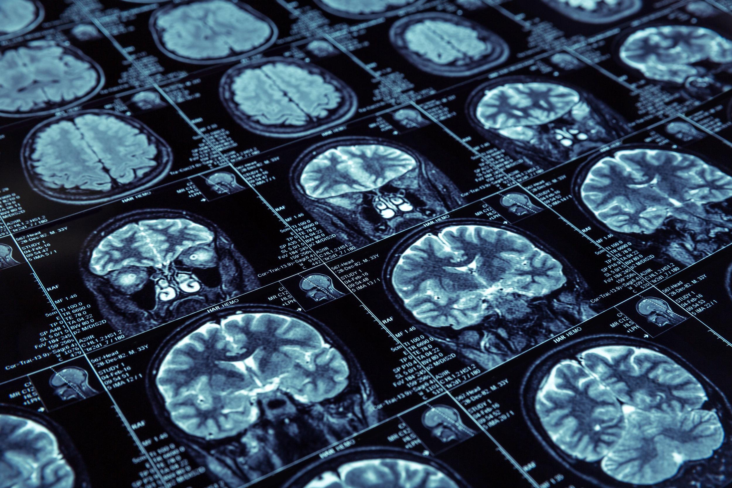 MRI of Brain.jpg