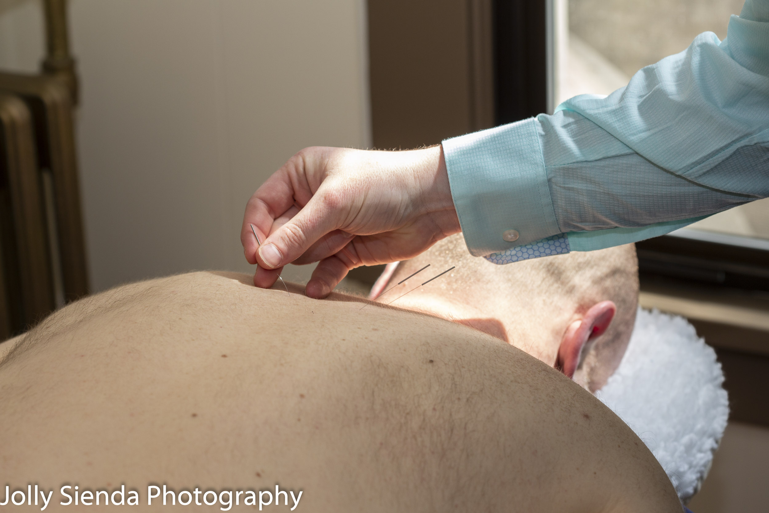 Patient receives an acupuncture treatment.