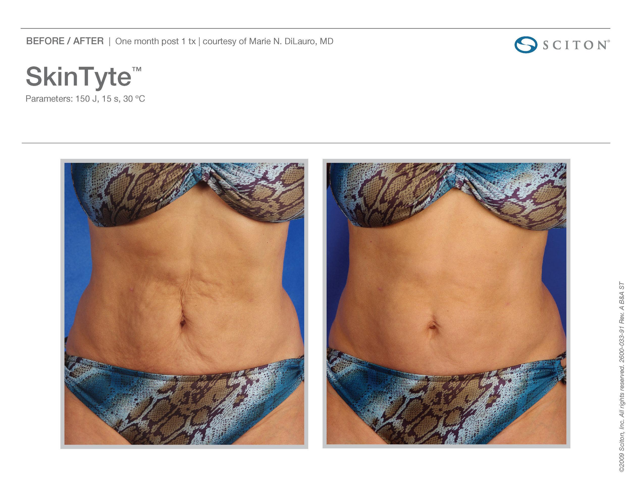 SkinTyte B&A Nov'17_Page_05.jpg