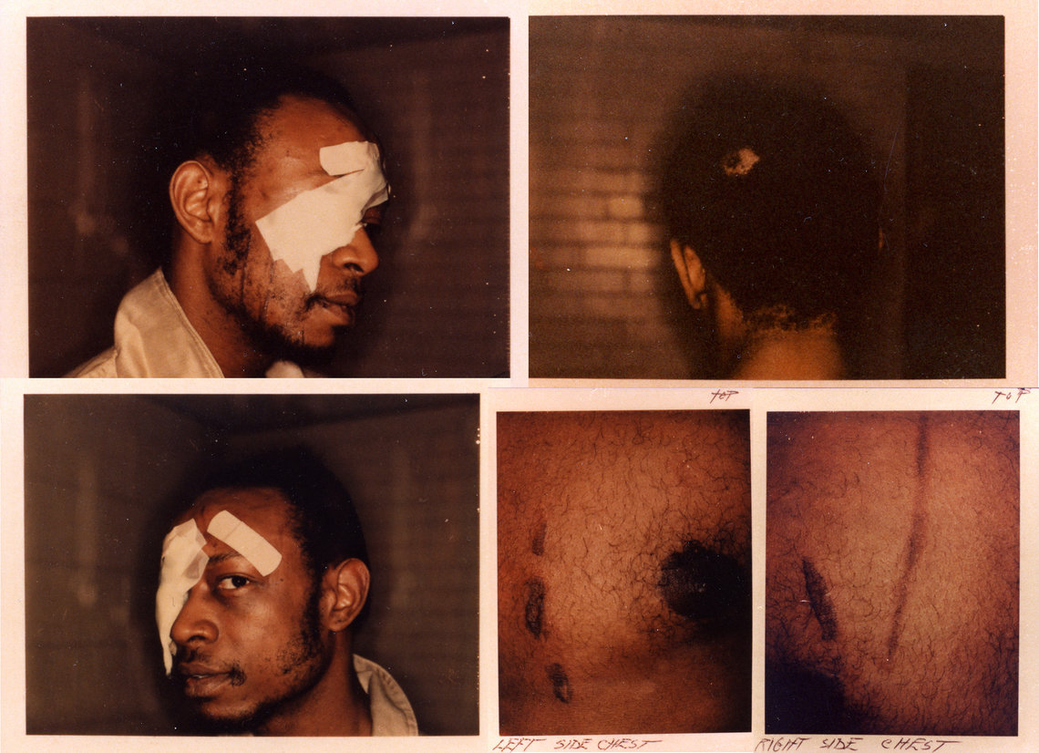 PhotoCredit: People's Law Office  Andrew Wilson said he was shocked, beaten and strangled with a plastic bag, and burned against a radiator by Chicago police officers in 1982.]