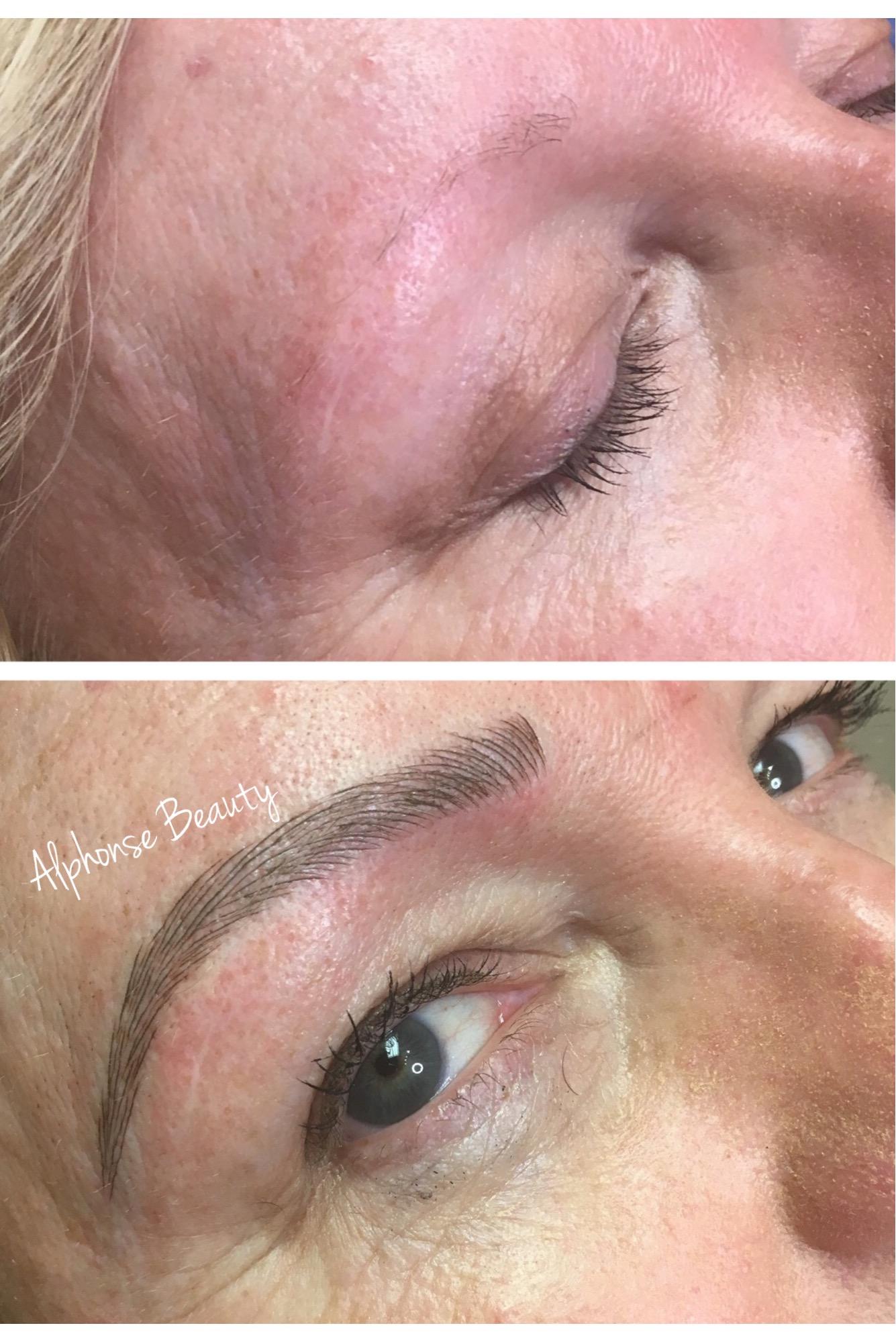 Eyebrow reconstruction using cosmetic tattoo Microblading procedure
