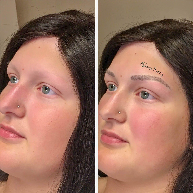 Eyebrow Microblading Results for Alopecia