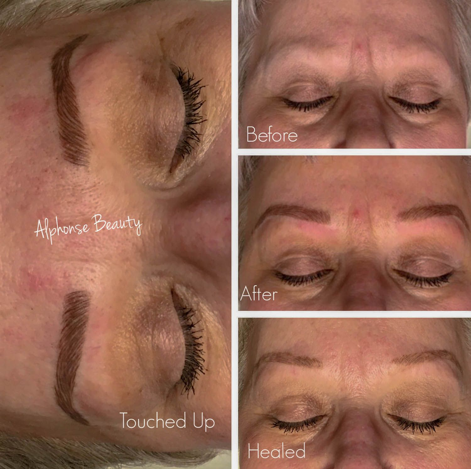 Complete reconstruction of eyebrows using Microblading at Alphonse Beauty